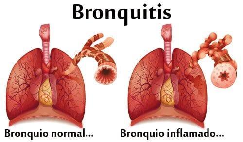 Remedios caseros para la bronquitis Alivio Rapido