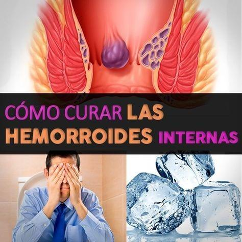 remedios para quitar las hemorroides internas
