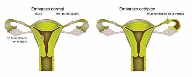 ¿Qué causa un embarazo ectópico?