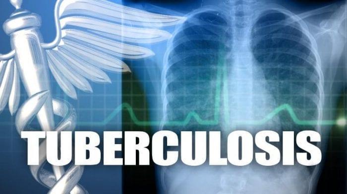 TUBERCULOSIS: Síntomas, Causas, Tipos, Tratamiento y Efectos