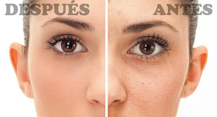Jabón De Azufre - Antes y Después, Beneficios y Usos